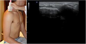 Posición del hombro para el estudio de la articulación acromioclavicular&#59; imagen ecográfica normal.
