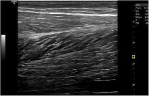 Aspecto ecográfico de un músculo sano en corte longitudinal en «pluma de ave».