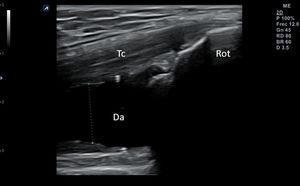 Colección anecoica comprimible con la sonda en un caso de derrame articular en receso superior de rodilla. Da: derrame articular; Rot: rótula; Tc: tendón cuadricipital.