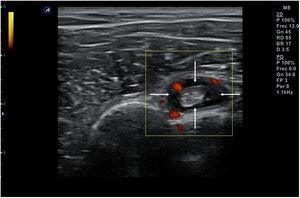 Engrosamiento anecoico (flechas) de la vaina del tendón de la porción larga del bíceps en un caso de tenosinovitis.