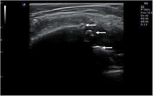 Interrupción y espiculación de la línea cortical de la rótula por erosión ósea de la misma.