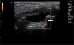 Señal doppler de potencia (flechas) que pone de manifiesto la presencia de neovasos en un proceso inflamatorio agudo sinovial.