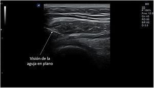 Visión de la aguja en una infiltración de articulación acromioclavicular mediante abordaje posterior «en plano» (flecha).