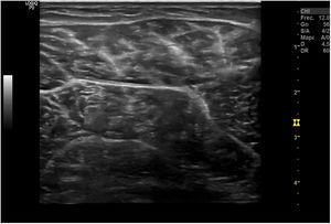 «Aspecto moteado» o reticular ecográfico de un músculo sano en corte transversal.