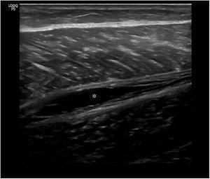 Rotura muscular de grado 1 con área anecoica que afecta solo a la aponeurosis (asterisco).