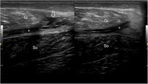 Rotura muscular de grado 2, que afecta a la unión miotendinosa entre el gemelo interno (Gi) y el soleo (So), con líquido interfascial (asterisco) y pequeño hematoma interfibras (flecha), típica tennis leg (pierna tenista).