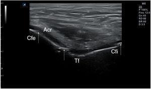 Calcificaciones lineales en el grosor del cartílago de la tróclea femoral (TF) y de los cóndilos femorales externo (Cfe) e interno (Cfi) obtenidas en corte transversal de la rodilla en flexión máxima.