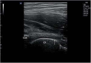 Irregularidad de la cortical (flechas) de la cabeza femoral en un corte longitudinal de la cadera. Cf: cabeza femoral; cót: cótilo.