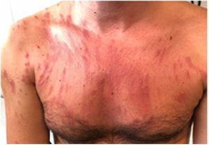 Lesiones eritematopapulosas, edematosas y de distribución lineal, en cara anterior de tórax y brazos.