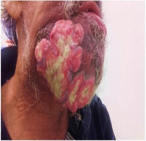 Imagen que muestra las lesiones externas de la tumoración.