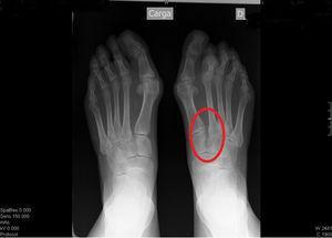 Radiografía en carga de ambos pies. Comparado con pie contralateral, se observa ensanchamiento del espacio entre el primer y segundo metatarsiano de pie derecho (círculo).
