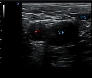 Corte transversal proximal a nivel de la vena femoral común derecha sin compresión de la sonda. AF: arteria femoral; VF: vena femoral; VS: vena safena.