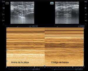 Vista ecográfica del pulmón en modo M: izquierda de la imagen con deslizamiento pleural, signo de la arena de la playa; derecha de la imagen sin deslizamiento pleural, signo del código de barras en un caso de neumotórax traumático.
