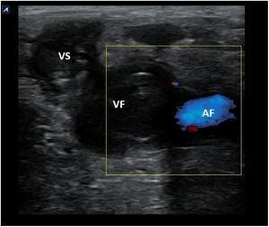 Imagen de ecografía doppler color de la vena femoral izquierda donde se observa contenido ecogénico en el interior de la misma y de la safena interna en un caso de trombosis venosa profunda proximal. AF: arteria femoral; VF: vena femoral; VS: vena safena.