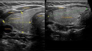 Lóbulo tiroideo derecho. Corte transversal y longitudinal.