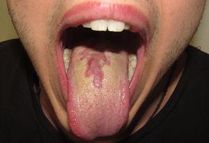 Placa depapilada de bordes geográficos en el dorso de la lengua.