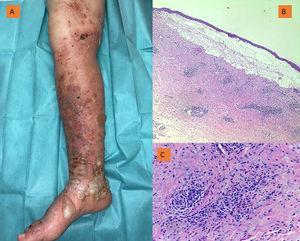 A) Ampollas tensas en miembro inferior derecho sobre base de insuficiencia venosa crónica. B) HEx2. Ampolla subepidérmica con infiltrado inflamatorio moderado en dermis superficial. C) HEx20: Detalle del infiltrado inflamatorio con presencia de eosinófilos.