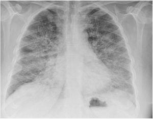 Radiografía de tórax: ICT normal. Infiltrado alveolo-intersticial bilateral de predominio en base derecha de cronología aguda.