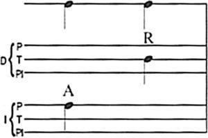 Pedro Alarcón: signo de notación, puntera y tacón raspado.