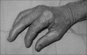 Tuberculosis verrucosa en dorso de la mano.