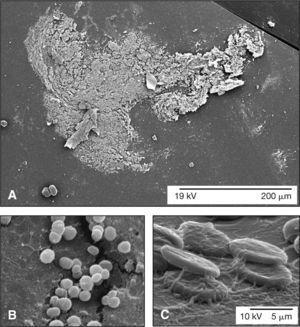 Hallazgos microscópicos en las endoftalmitis crónicas. A) Mediante microscopía electrónica de barrido, se observa la formación de una biopelícula bacteriana sobre la superficie de una lente intraocular explantada en un caso de endoftalmitis de aparición tardía. B) En este caso, la biopelícula presentó característica heterogénea y de baja adhesividad formada por células cocoidales sugestiva de una infección por Staphylococcus spp. En la parte superior izquierda de la microfotografía, se puede observar la deposición de hexapolisacáridos de adhesión sobre la matriz extracelular de la superficie de la lente intraocular, producidos por los propios microorganismos que conforman la biopelícula. C) En otras ocasiones, la biopelícula presentó característica homogénea y de alta adhesividad constituida por la presencia de bacterias filamentosas, sugestivas de una contaminación por hifas. Asimismo, se pudo observar la presencia de algunos hematíes asociados a la biopelícula. A, barra: 200 μm; B y C, barra: 5 μm.