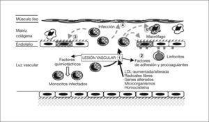 Patogenia de la arteriosclerosis y su relación con la infección por Chlamydophila pneumoniae (I). (1) Lesión de los vasos por diferentes causas. (2) Esta lesión incrementa la síntesis de proteína quimiotáctica 1 de monocito y moléculas de adhesión que fijan leucocitos infectados; actividad procoagulante de lipoproteínas tisulares, con trombosis y adhesión de plaquetas. La célula endotelial se infecta por C. pneumoniae intramonocítica. (3) Los monocitos migran al subendotelio, liberan citocinas proinflamatorias y expresan la molécula CD14. El interferón 7 aumenta la dioxigenasa intramonocítica que oxida el triptófano hasta quineurina. (4) Se infectan las células musculares lisas y (5) los macrófagos.
