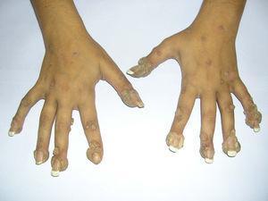 Aspecto de las lesiones previo al inicio de tratamiento con cidofovir al 1%.