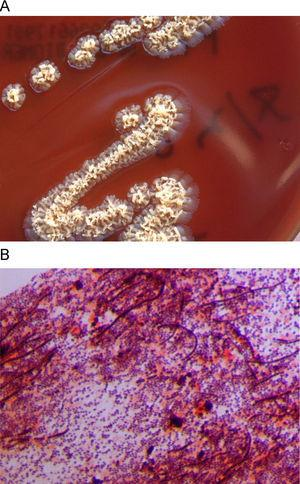A) Irregular, rough, yellowish D. congolensis colonies in blood agar. B) Gram staining of the colonies showing gram-positive coccoid forms, some of them associated in parallel rows of chains, and long, irregular filaments.
