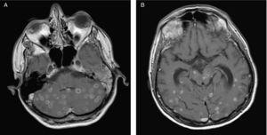 Resonancia magnética cerebral de control evolutivo que muestra aumento paradójico de tamaño de las lesiones cerebrales parenquimatosas en cerebelo (a) y hemisferios cerebrales (b) con captación periférica en anillo correspondientes a tuberculomas en el contexto de síndrome inflamatorio de reconstitución inmune.