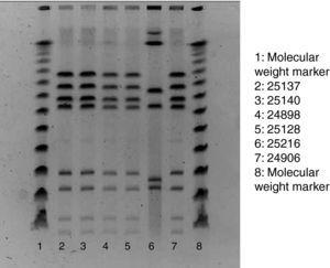 Pulsed-field gel electrophoresis of restriction fragments of the chromosomal DNA, obtained following the SmaI (Roche) restriction enzyme and protocol.