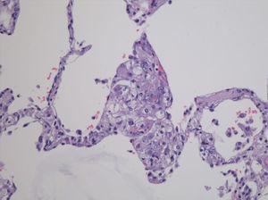 Estudio necrópsico: infiltración por criptococo en tejido pulmonar.