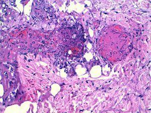 Biopsia cutánea. Tinción de PAS (360×480). Hifas de Aspergillus spp. con invasión vascular y trombosis.