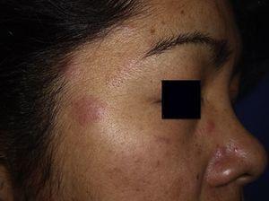 Detalle del aspecto inflamatorio en una de las lesiones faciales.