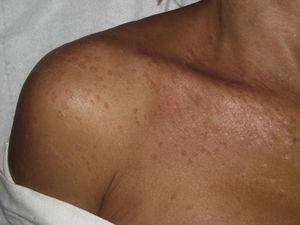 Máculas e placas verruciformes sobre o ombro direito.