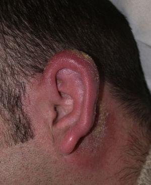 Pabellón auricular de aspecto inflamado y descamativo.
