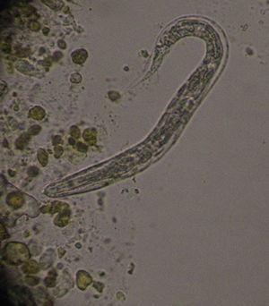 Larva rhabditoide 40× en examen microscópico de heces.