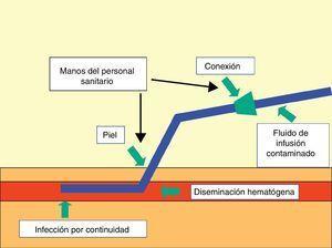 Esquema de las formas de acceso de los microorganismos a los catéteres vasculares.