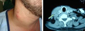 Tromboflebitis séptica de la vena yugular como complicación de una infección relacionada con un catéter venoso central.