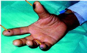 Signos periféricos de endocarditis como complicación de una bacteriemia asociada con un catéter venoso periférico.