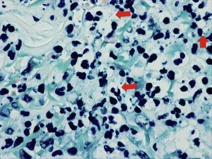 Aislados bacilos ácido-alcohol resistentes, finos y de morfología ligeramente curvada (flechas) tras la tinción con Ziehl-Neelsen.