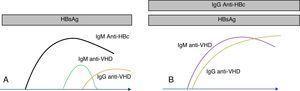 Marcadores serológicos del VHD. Los anticuerpos anti-VHD aparecen en presencia del antígeno de superficie del VHB. En la coinfección (A) los anticuerpos anti-VHD se elevan conjuntamente con la IgM anti-HBc. En la sobreinfección (B), la seroconversión de VHD se presenta sobre anticuerpos anti-HBc de clase IgG.