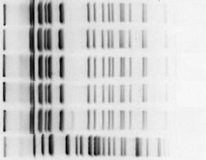 Dendograma generado a partir de los resultados de tipificación de los aislados de Burkholderia cepacia recibidos en el laboratorio del HUVM.