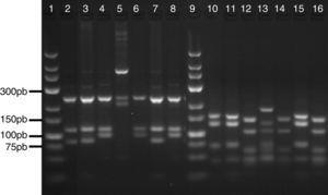 Resultados del análisis de restricción a través de la metodología molecular PRA.
