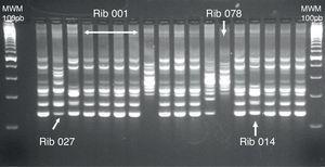 Gel de electroforesis de una PCR-ribotipado. Se muestran los perfiles de bandas obtenidos para algunos de los ribotipos más frecuentes en España (001, 014 y 078) junto con el ribotipo de referencia 027.