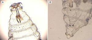 Detalle de larva de Oestrus ovis de primer estadio. A) Se observa un polo superior con ganchos bucales bien desarrollados con forma de cuerno, unidos a un esqueleto cefalofaríngeo prominente. B) Se observa el extremo caudal con presencia de 2 abultamientos terminales con numerosas espinas.