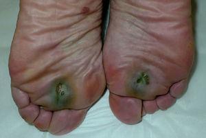 Úlceras plantares de localización bilateral y simétrica de coloración verdosa.