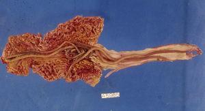 Presencia de adultos de Ascaris lumbricoides en una pieza de tejido intestinal de un paciente con obstrucción secundaria a una infestación masiva.