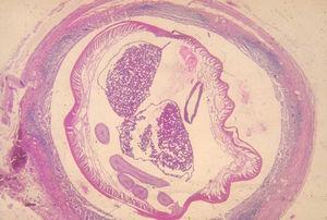 Detalle de una sección de un apéndice de un paciente con un cuadro agudo, donde se puede observar la presencia de un Ascaris lumbricoides en el interior del mismo.