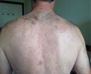 Lesiones cutáneas en zona cervical, espalda y miembros superiores.