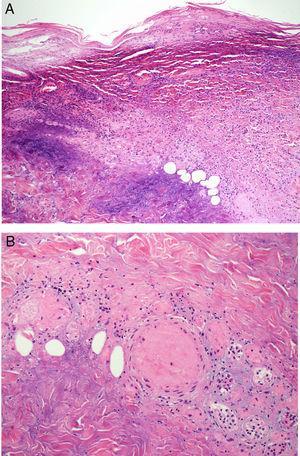 A) Biopsia cutánea de una de las úlceras necróticas que muestra necrosis de la dermis superficial y profunda, con gran componente inflamatorio dérmico. B) A mayor aumento, además de la necrosis y el infiltrado inflamatorio polimorfonuclear, observamos vasos sanguíneos dérmicos con trombosis vascular, en el contexto del proceso inflamatorio.